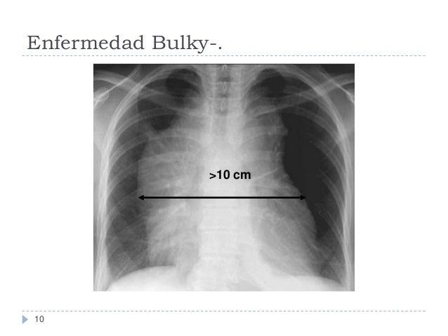 Enfermedad Bulky-.  >10 cm  10