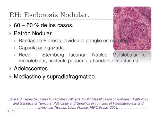 EH: Esclerosis Nodular.    60 – 80 % de los casos. Patrón Nodular.        Bandas de Fibrosis, dividen el ganglio en...