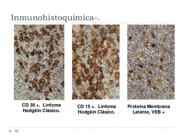 Inmunohistoquimica-.  CD 30 +. Linfoma Hodgkin Clásico.  19  CD 15 +. Linfoma Hodgkin Clásico.  Proteína Membrana Latente,...