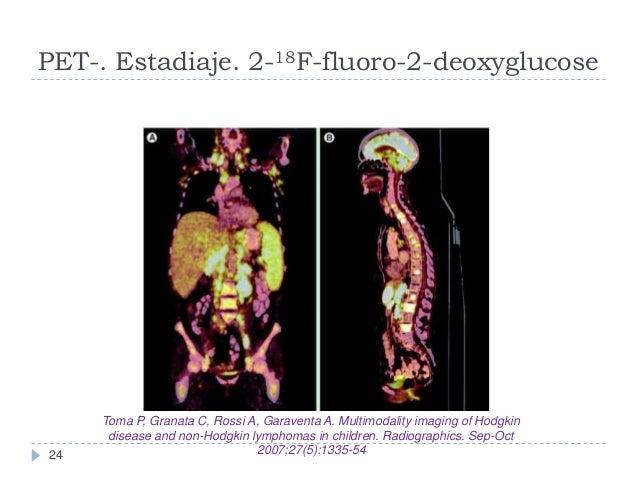 PET-. Estadiaje. 2-18F-fluoro-2-deoxyglucose  24  Toma P, Granata C, Rossi A, Garaventa A. Multimodality imaging of Hodgki...