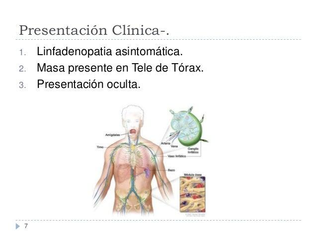 Presentación Clínica-. 1. 2.  3.  7  Linfadenopatia asintomática. Masa presente en Tele de Tórax. Presentación oculta.