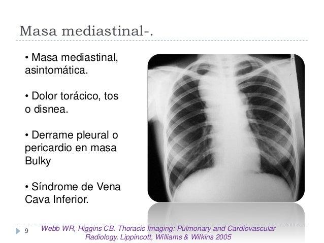 Masa mediastinal-. • Masa mediastinal, asintomática. • Dolor torácico, tos o disnea.  • Derrame pleural o pericardio en ma...
