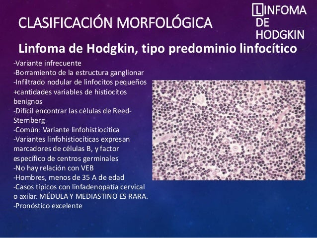 CLASIFICACIÓN MORFOLÓGICA L INFOMA DE HODGKIN Linfoma de Hodgkin, tipo predominio linfocítico -Variante infrecuente -Borra...