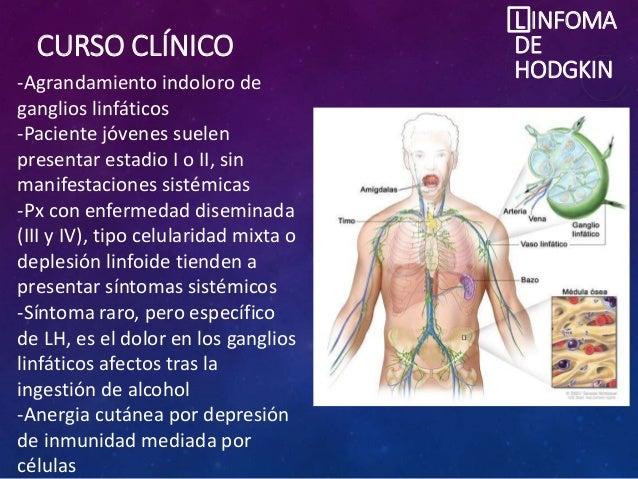 CURSO CLÍNICO L INFOMA DE HODGKIN-Agrandamiento indoloro de ganglios linfáticos -Paciente jóvenes suelen presentar estadio...