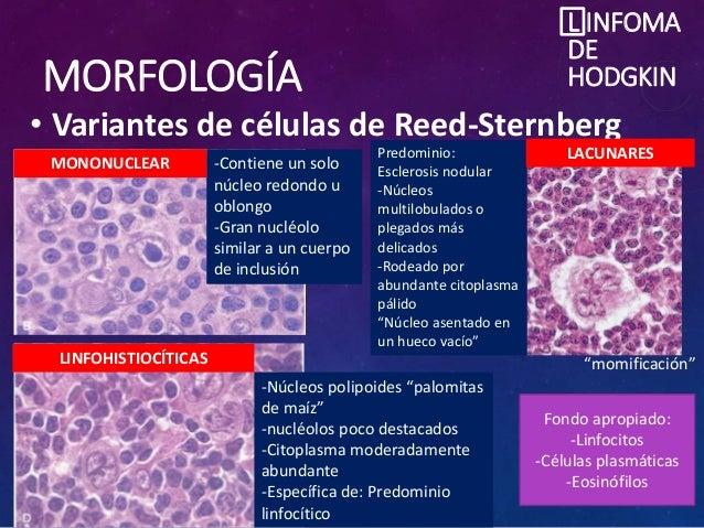 MORFOLOGÍA • Variantes de células de Reed-Sternberg L INFOMA DE HODGKIN -Contiene un solo núcleo redondo u oblongo -Gran n...