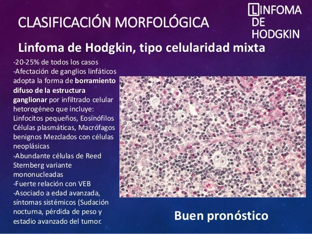 CLASIFICACIÓN MORFOLÓGICA L INFOMA DE HODGKIN Linfoma de Hodgkin, tipo celularidad mixta -20-25% de todos los casos -Afect...