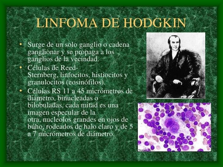 LINFOMA DE HODGKIN • Surge de un solo ganglio o cadena   ganglionar y se propaga a los   ganglios de la vecindad. • Célula...