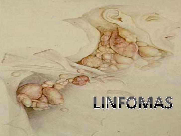 LINFOMAS<br />
