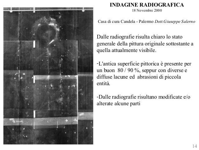 INDAGINE RADIOGRAFICA  18 Novembre 2000  Casa di cura Candela - Palermo Dott.Giuseppe Salerno  Dalle radiografie risulta c...