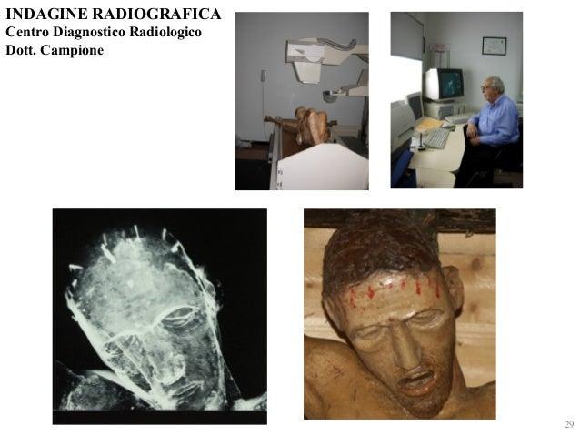 INDAGINE RADIOGRAFICA  Centro Diagnostico Radiologico  Dott. Campione  29