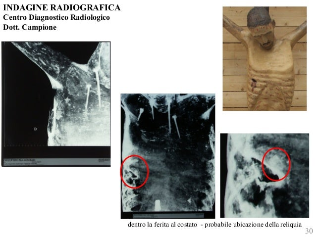 INDAGINE RADIOGRAFICA  Centro Diagnostico Radiologico  Dott. Campione  dentro la ferita al costato - probabile ubicazione ...