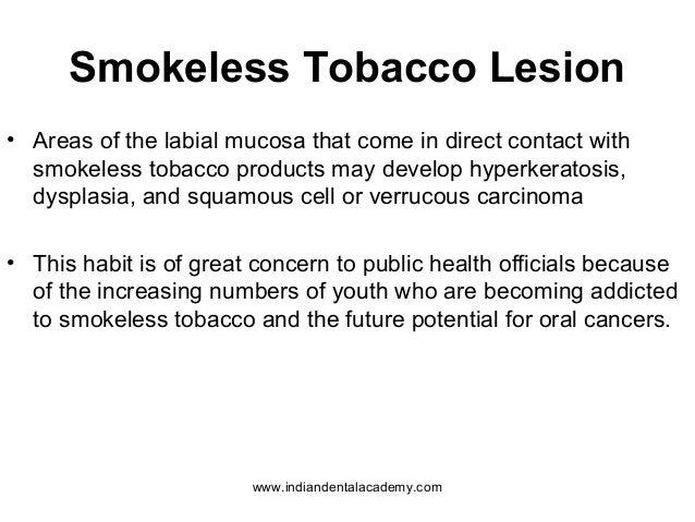 Smokeless Tobacco Lesion • Areas of the labial mucosa that come in direct contact with smokeless tobacco products may deve...