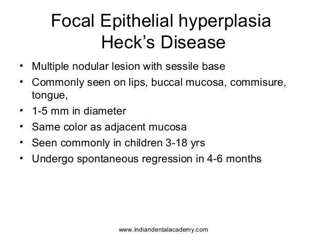 Focal Epithelial hyperplasia Heck's Disease • Multiple nodular lesion with sessile base • Commonly seen on lips, buccal mu...