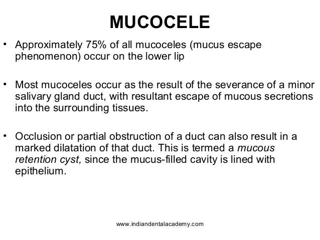 MUCOCELE • Approximately 75% of all mucoceles (mucus escape phenomenon) occur on the lower lip • Most mucoceles occur as t...