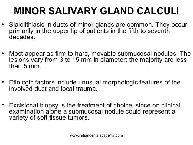 MINOR SALIVARY GLAND CALCULI • Sialolithiasis in ducts of minor glands are common. They occur primarily in the upper lip o...