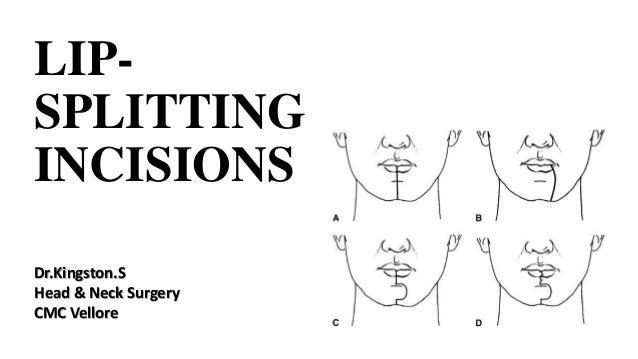 LIP- SPLITTING INCISIONS Dr.Kingston.S Head & Neck Surgery CMC Vellore