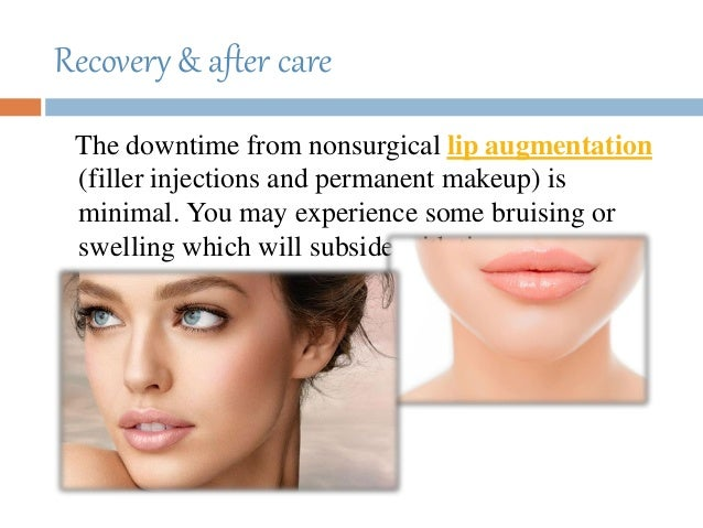 Recovery & after care The downtime from nonsurgical lip augmentation (filler injections and permanent makeup) is minimal. ...