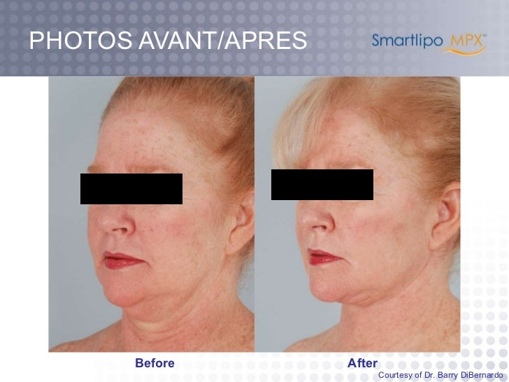 PHOTOS AVANT/APRES Before After Courtesy of Dr. Barry DiBernardo