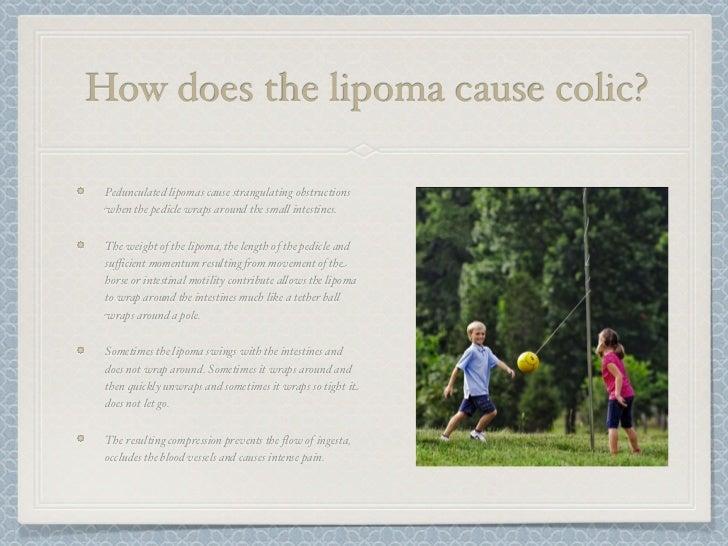 Lipoma - Diagnosis and treatment - Mayo Clinic