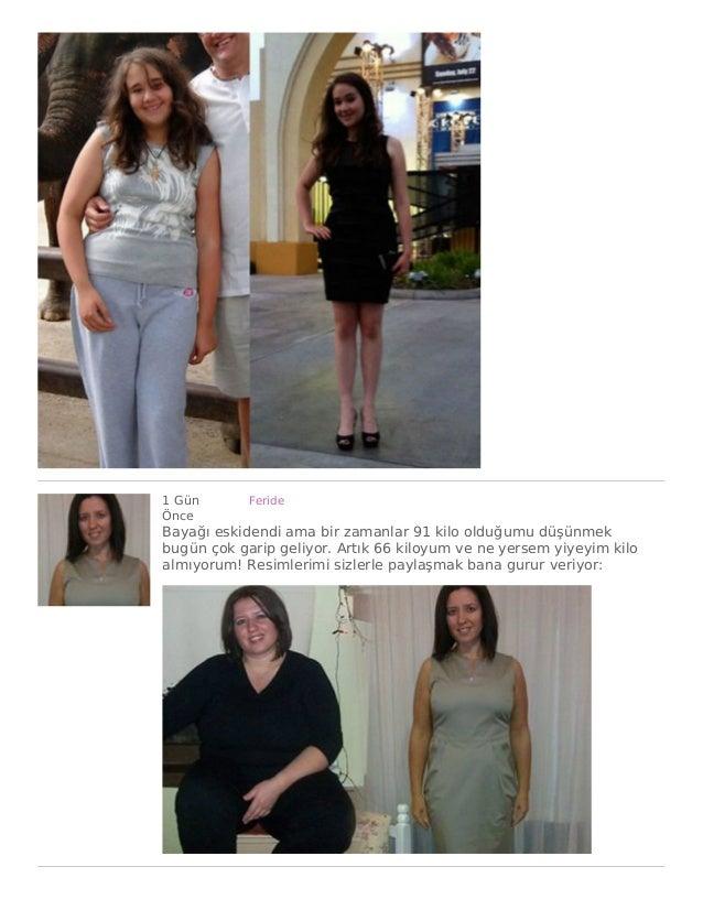 1 Gün Önce Feride Bayağı eskidendi ama bir zamanlar 91 kilo olduğumu düşünmek bugün çok garip geliyor. Artık 66 kiloyum ve...