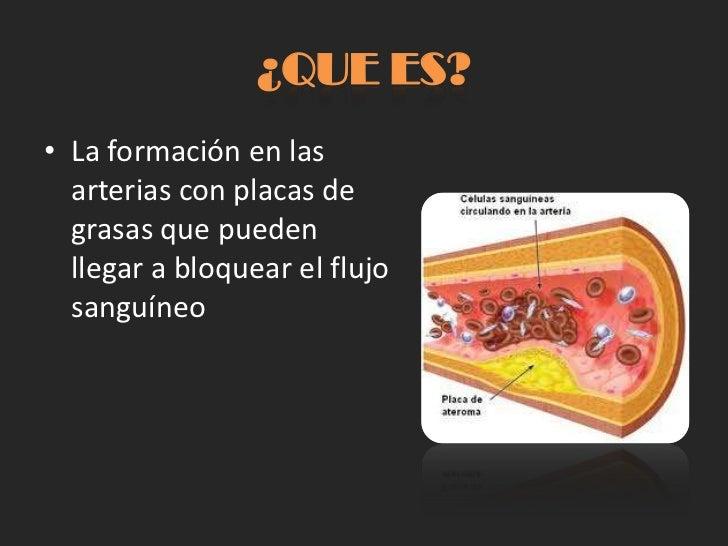 La várice varicosa como quitar los hinchazones