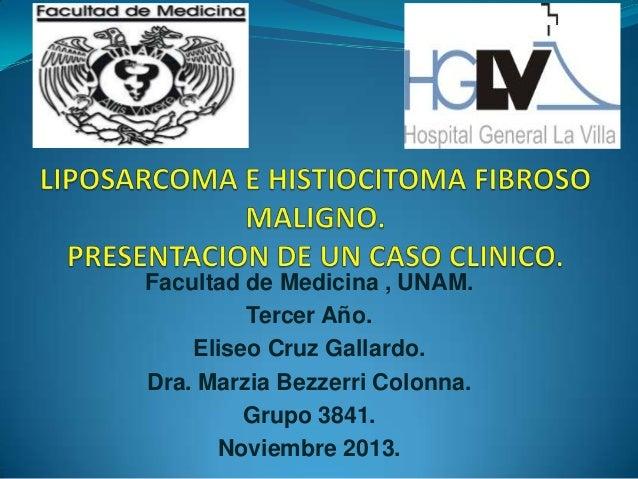 Facultad de Medicina , UNAM. Tercer Año. Eliseo Cruz Gallardo. Dra. Marzia Bezzerri Colonna. Grupo 3841. Noviembre 2013.