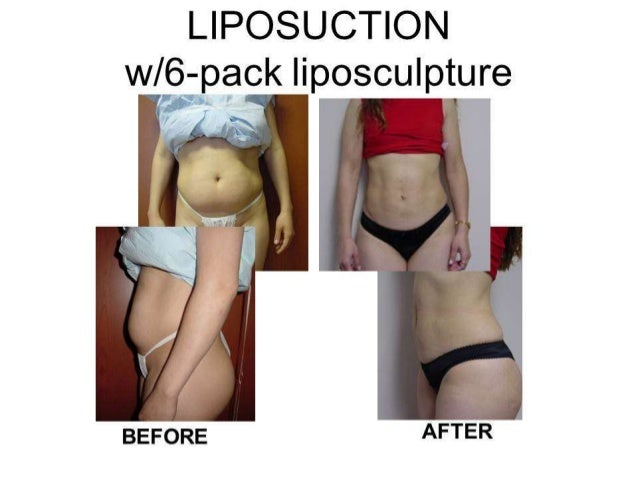 liposuction essay Dr andrew lofman board-certified plastic surgeon dr andrew lofman, facs is one of michigan's most experienced plastic surgery, cosmetic surgery, and non -surgical procedure doctors who can enhance your natural beauty whether your just seeking information about procedures like breast augmentation, liposuction,.