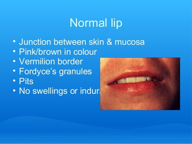 Normal lip • Junction between skin & mucosa • Pink/brown in colour • Vermilion border • Fordyce's granules • Pits • No swe...