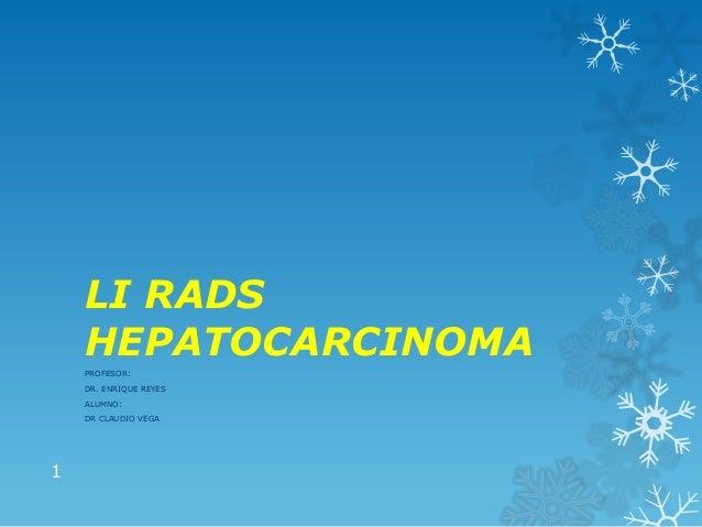 LI RADS HEPATOCARCINOMA PROFESOR: DR. ENRIQUE REYES ALUMNO: DR CLAUDIO VEGA 1