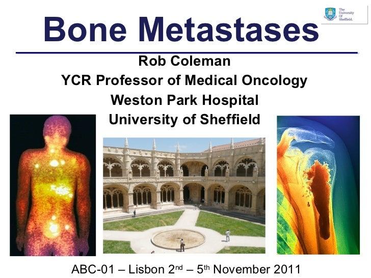 Rob Coleman YCR Professor of Medical Oncology Weston Park Hospital University of Sheffield Bone Metastases ABC-01 – Lisbon...