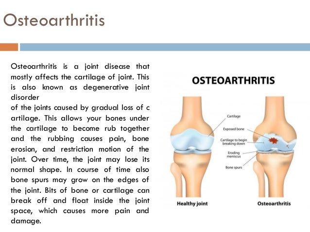 list of 6 best homeopathic medicines for osteoarthritis, Skeleton