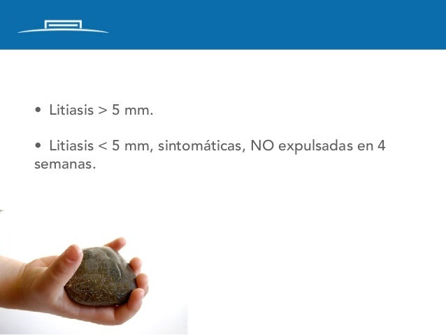 Litiasis Urinaria