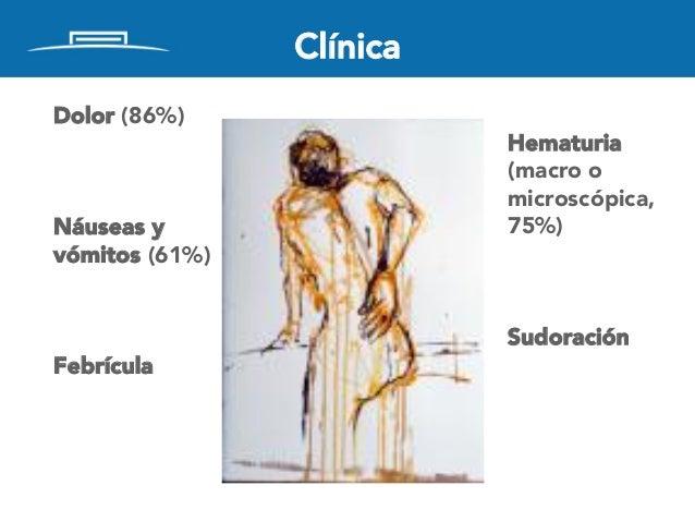 Clínica Dolor (86%) Náuseas y vómitos (61%) Febrícula Hematuria (macro o microscópica, 75%) Sudoración