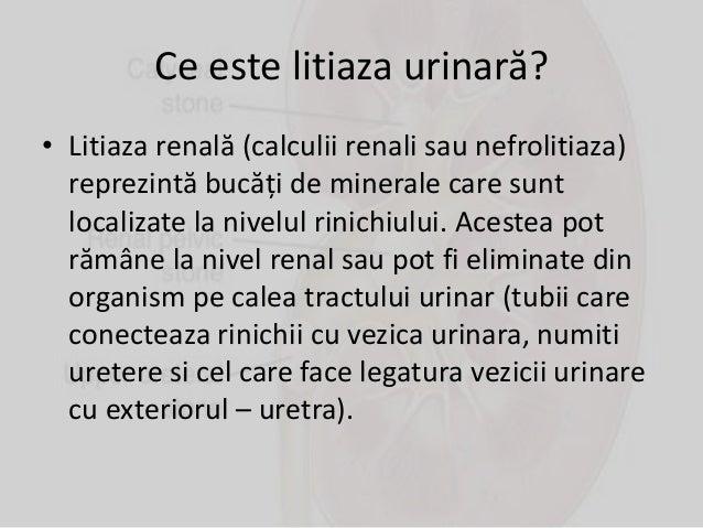 Litiaza urinară Slide 3