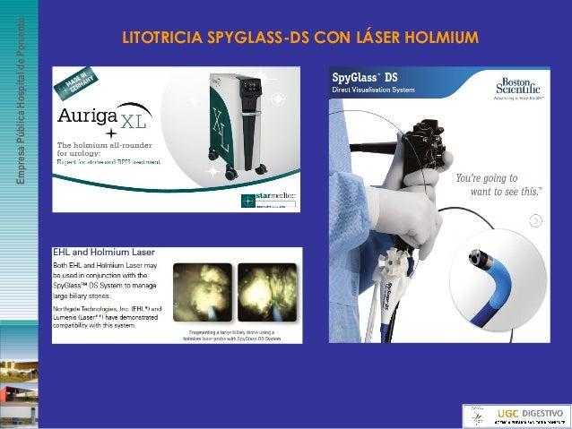 EmpresaPúblicaHospitaldePoniente LITOTRICIA SPYGLASS-DS CON LÁSER HOLMIUM
