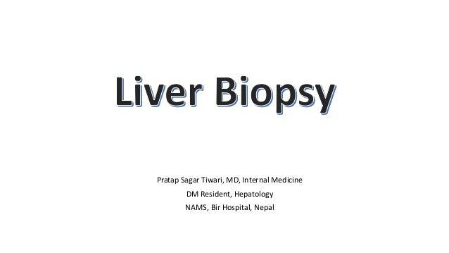 Pratap Sagar Tiwari, MD, Internal Medicine DM Resident, Hepatology NAMS, Bir Hospital, Nepal