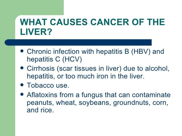 Liver Cancer Eng