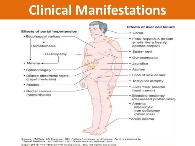 Abdominal Fullness and Dyspnea
