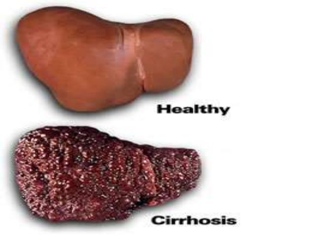 liver cirrhosis for students n, Human Body