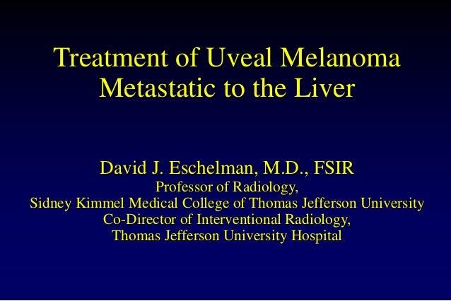 Treatment of Uveal Melanoma Metastatic to the Liver David J. Eschelman, M.D., FSIR Professor of Radiology, Sidney Kimmel M...