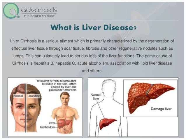 Liver disease Treatment | Stem Cell Treatment for Liver Damage