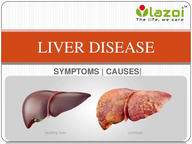 Liver Disease: Symptoms, causes, treatment, prevention and ...