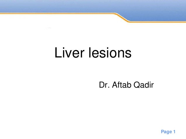 Powerpoint Templates Page 1 Liver lesions Dr. Aftab Qadir
