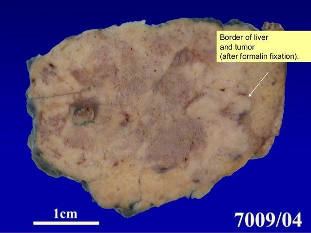 peliosis hepatis anabolic steroids