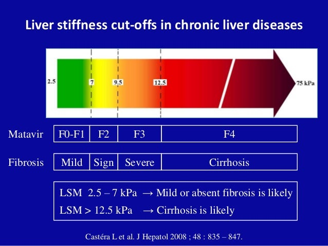 Liver stiffness measurement (fibroscan®)