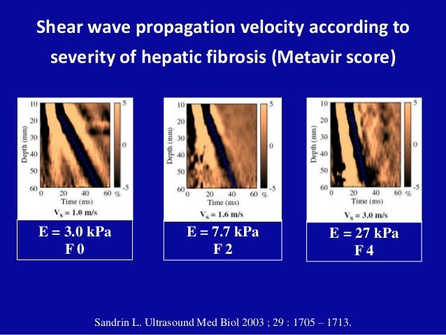 Shear wave propagation velocity according to severity of hepatic fibrosis (Metavir score) Sandrin L. Ultrasound Med Biol 2...