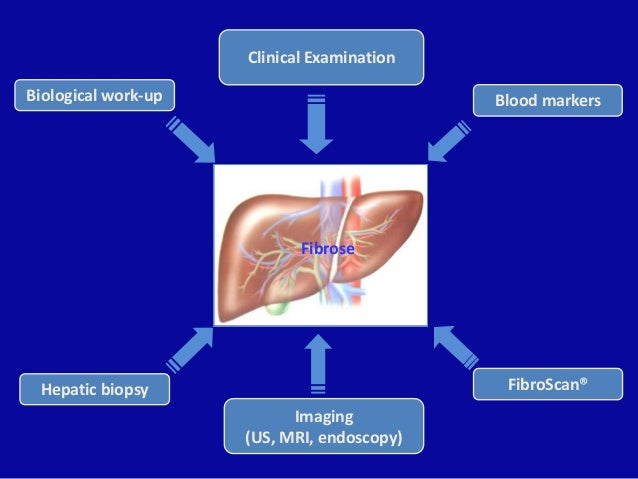 Fibrose Blood markers FibroScan® Imaging (US, MRI, endoscopy) Hepatic biopsy Biological work-up Clinical Examination