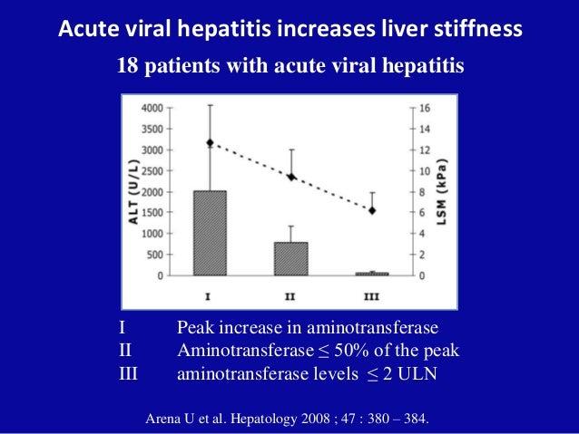 Acute viral hepatitis increases liver stiffness 18 patients with acute viral hepatitis I Peak increase in aminotransferase...