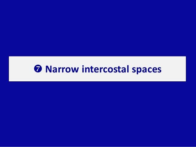  Narrow intercostal spaces