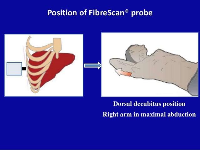 Position of FibreScan® probe Dorsal decubitus position Right arm in maximal abduction